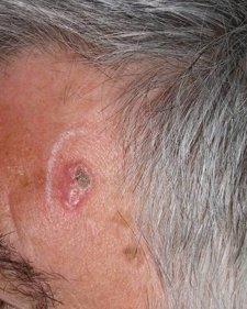 La incidencia del cáncer de piel no melanoma es el doble en los pacientes con VIH