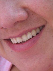 El sobrepeso podría estar vinculado a un mayor riesgo de enfermedad de las encías