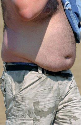Los hombres obesos tienen alto riesgo de cáncer de próstata