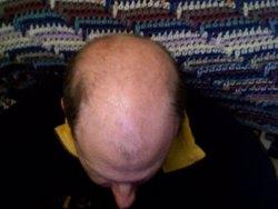 La mayor parte de las alopecias se pueden controlar con un diagnóstico a tiempo, según experto