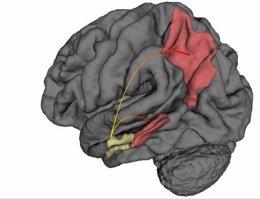 Dónde comienza el Alzheimer y cómo se propagam