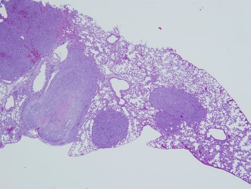 Metástasis de pulmón