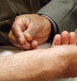 Detectan irregularidades en las agujas de acupuntura
