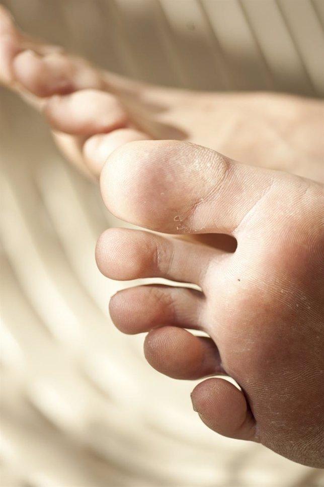 El hongo sobre el pulgar del pie en la piel