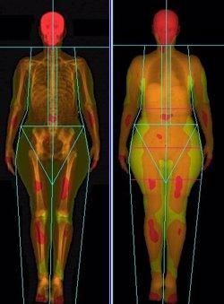El sobrepeso aumenta el riesgo del cáncer de mama, con independencia de donde se acumule la grasa