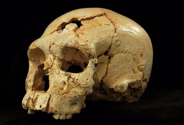 Reconstrucción del cráneo 17.