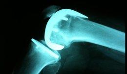 Foto: Canadá.- Las prótesis de rodilla pueden ser menos efectivas para las personas pesimistas (FLICKER/MIKEBAIRD)