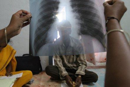 """Foto: A nivel mundial, hay deficiencias """"letales"""" en el abordaje de la tuberculosis (FLICKR/THE SPEAKER)"""