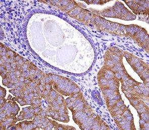 Foto: Un medicamento para la pérdida ósea puede ayudar a prevenir el cáncer de endometrio (VHIR)