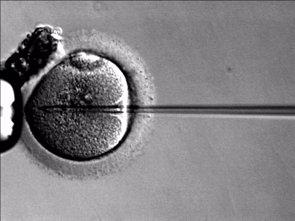 Foto: La salud de los bebés nacidos tras fecundación 'in vitro' ha mejorado durante los últimos 20 años (WIKIMEDIA COMMONS)