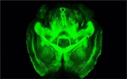 Foto: Estimular el hipotálamo permite recuperar pérdida de memoria (STANFORD UNIVERSITY)