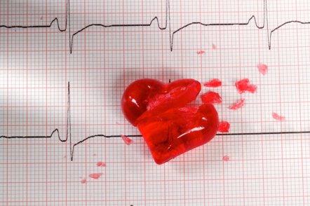 Foto: Descubren la fórmula que calcula el riesgo de morir (GETTY//RG-VC)