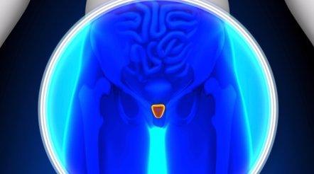 Foto: Nueva vía para tratar la hiperplasia benigna de próstata (GETTY//DECADE3D)