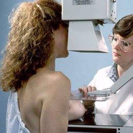 Foto: Unas 6.500 extremeñas se someterán a mamografías (NIH)