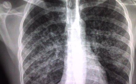 Foto: Menos casos y muertes por tuberculosis, pero más resistencias a fármacos (SANDRA BERMÚDEZ/ FLICKR)