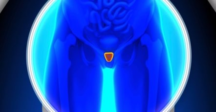 Foto: Cuando la próstata comienza a crecer (GETTY//DECADE3D)