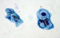 Foto: Experts reclamen vacunar també els homes contra el virus del papil·loma (FLICKR/ED UTHMAN)