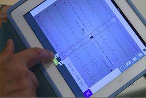 ECG Camera, una aplicación para electrocardiogramas