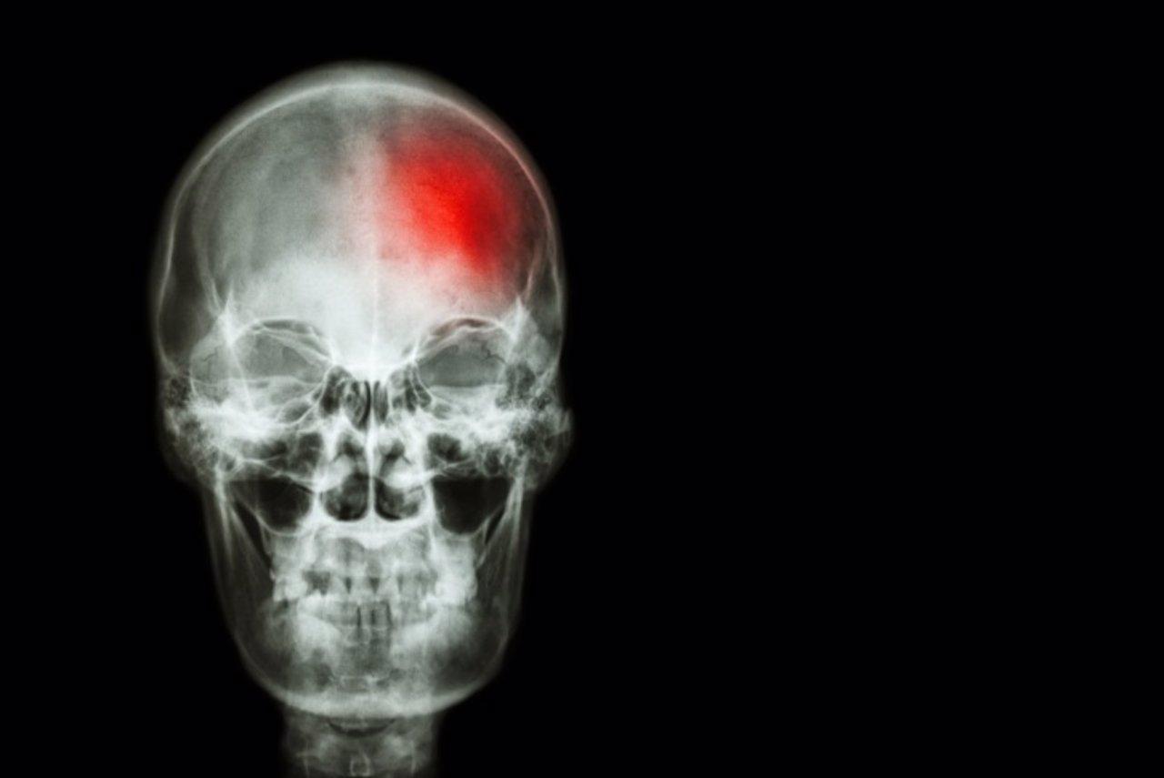 Ictus, cerebro, cerebrovascular