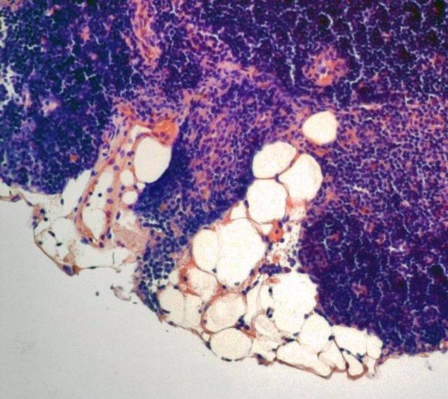 Una hormona que extiende la vida útil refuerza la inmunidad del cuerpo