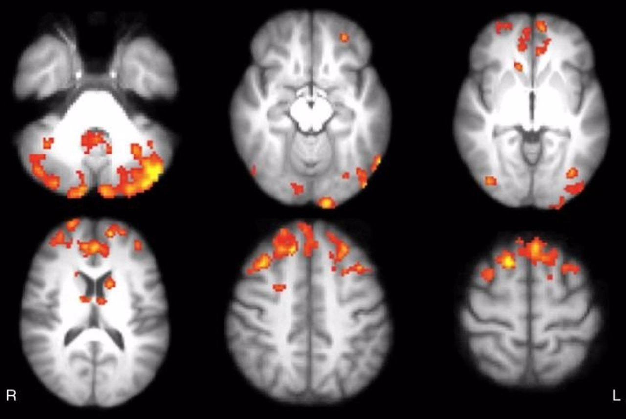 Videojuegos mejoram conexiones cerebrales en pacientes con esclerosis múltiple