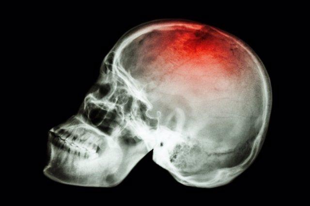 Cerebro, cabeza, radiografía, ictus