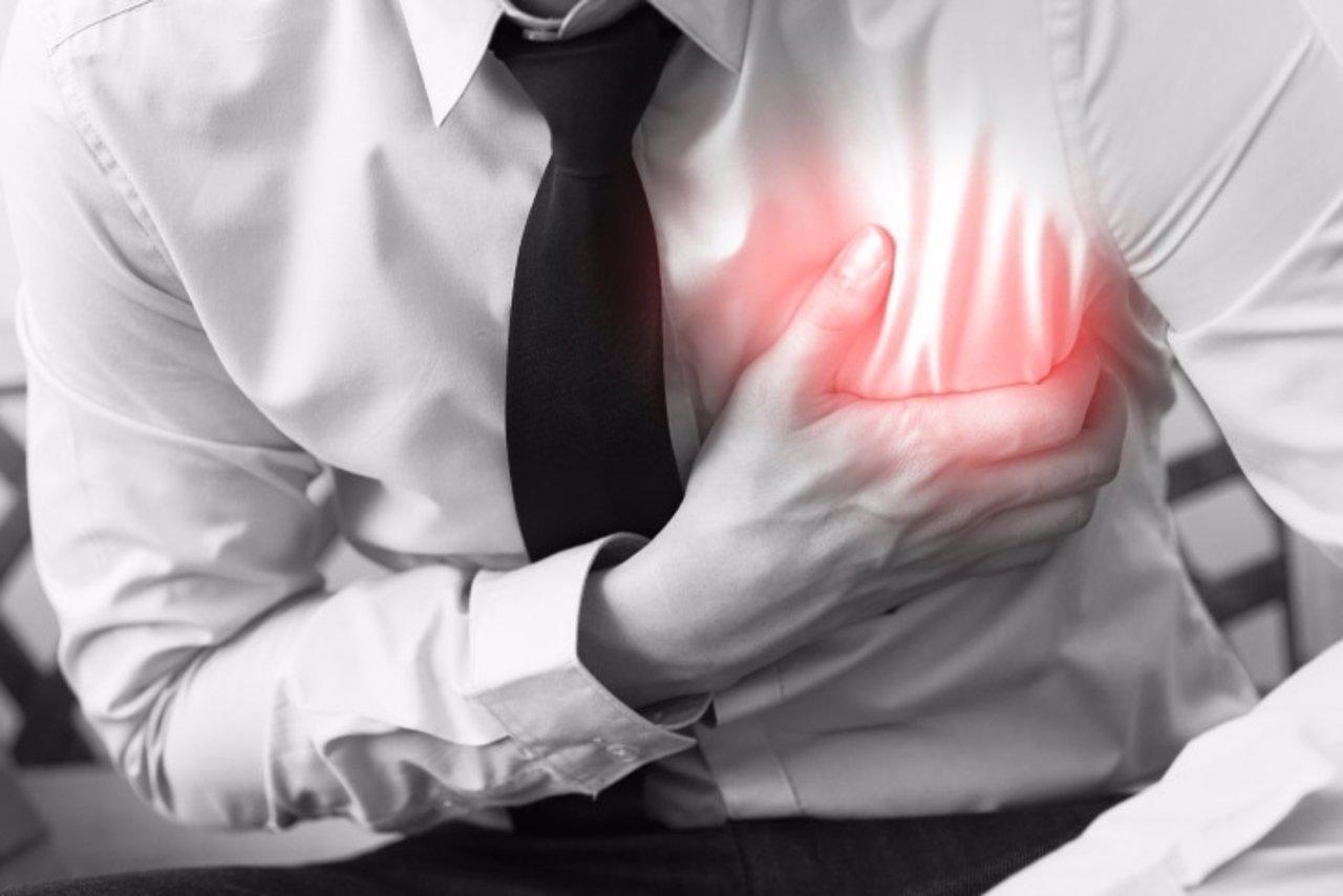 Implant en sheynom el departamento de la columna vertebral las revocaciones