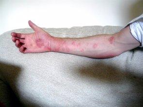 Recomendaciones para evitar las urticarias (FLICKR/ANDY CARTER)
