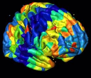 Factores genéticos, responsables de crear patrones anatómicos en la corteza cerebral (QIAN PENG Y COLEGAS)