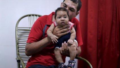 Brasil registra más de 1.700 casos de microcefalia