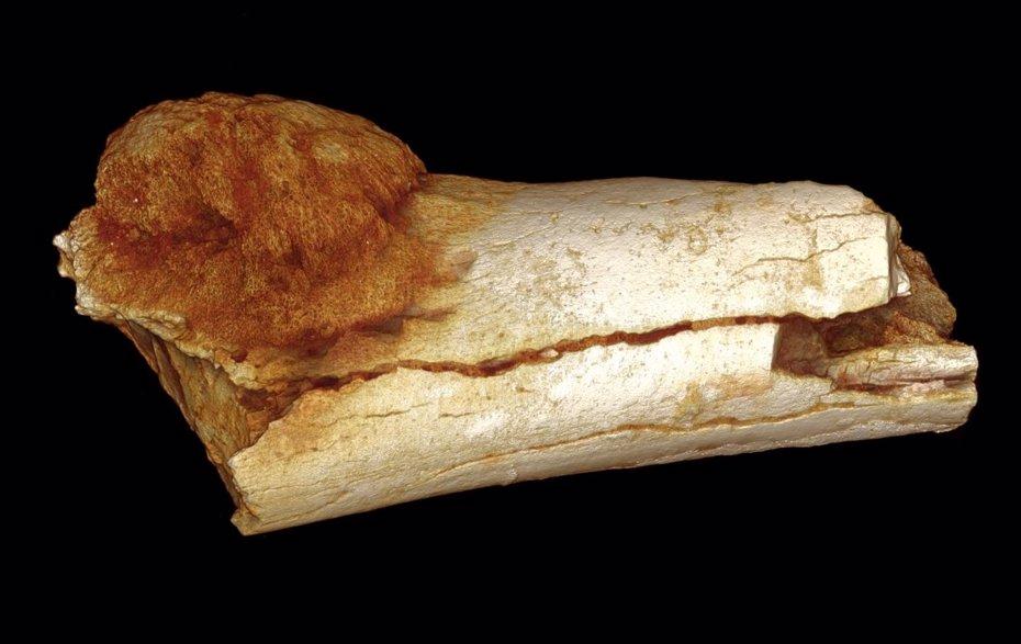 Foto: Los restos más antiguos del cáncer son de hace 1,7 millones de años (PATRICK RANDOLPH-QUINNEY (UCLAN))