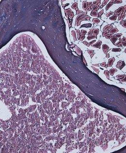 Médula ósea de ratones deficientes en la proteina AIRAPL