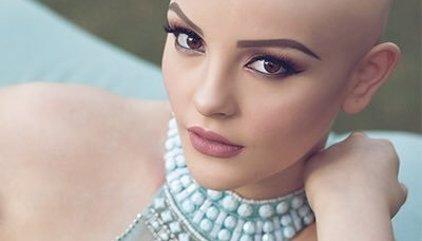 Andrea Sierra Salazar, la modelo con cáncer que inspira al mundo