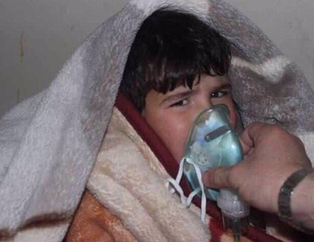 Un niño afectado por un ataque de gas de cloro