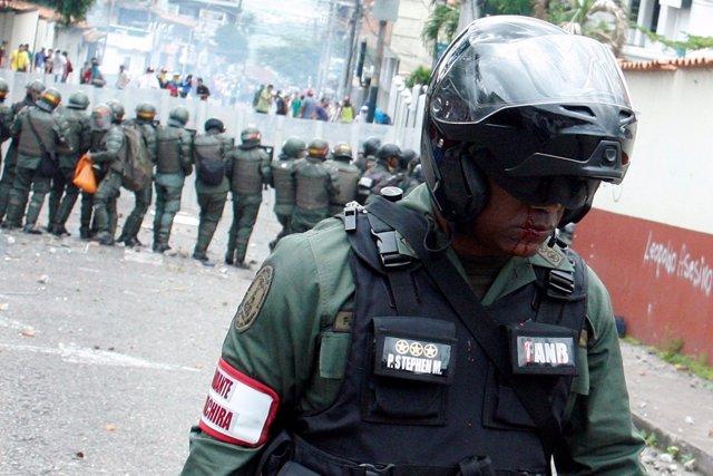 Policía herido en las protestas en Venezuela