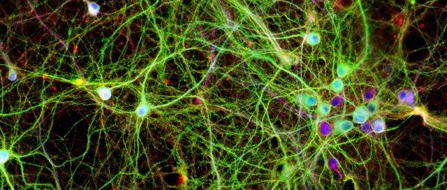 Neuronas en placa de cultivo