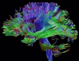 Imagen de cerebro generada a partir de resonancia magnética