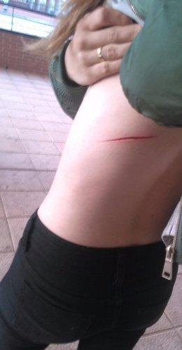 La víctima muestra la lesión con arma blanca sufrida.