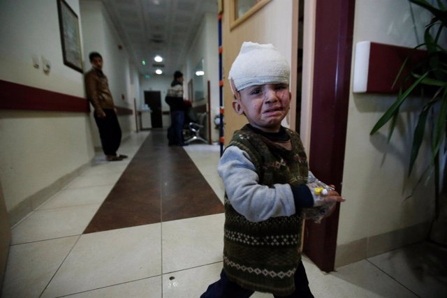 Un niño iraquí es tratado en un hospital en Erbil, cerca de Mosul
