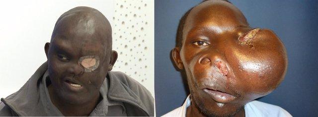Mike, tras la operación y con el tumor antes de ser intervenido