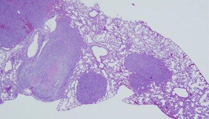 Un estudio señala que células tumorales dependen de las grasas para iniciar la metástasis