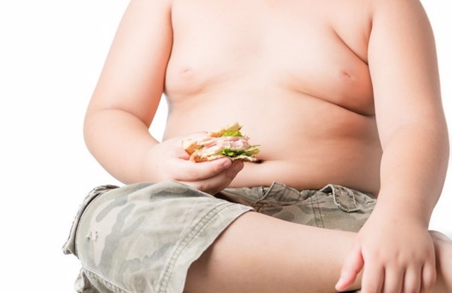 Obesidad infantil. Niño con sobrepeso