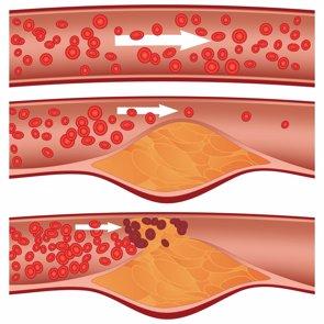Tu colesterol ha podido aumentar un 10% en Navidad. ¿Qué hacer para bajarlo? (EUROPA PRESS)