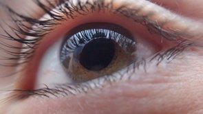Las cataratas en el ojo, 10 años antes por el uso de ordenadores y móviles (PIXABAY)