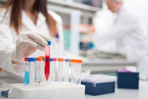 AstraZeneca aumenta su inversión en I+D superando los 5.800 millones de dólares (GETTY//MINERVA STUDIO)