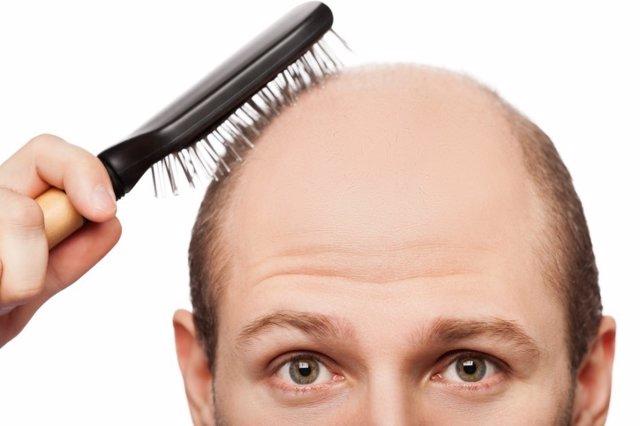 Calvo, calvicie, alopecia