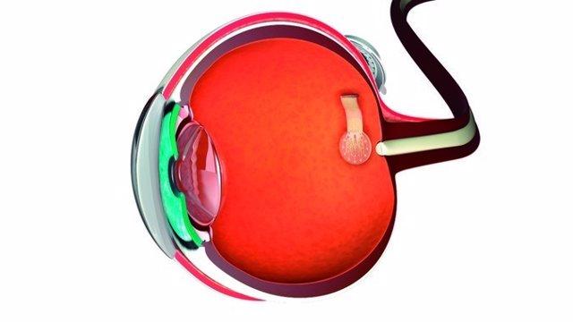 Esquema de prótesis de retina con estimuladores de grafeno