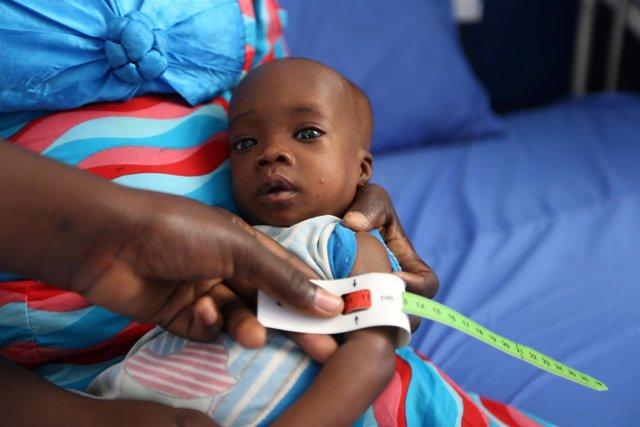 Un niño es atendido en el noreste de Nigeria por desnutrición
