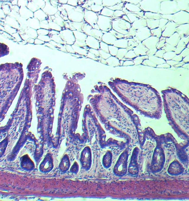 Vellosidades intestinales de persona mayor