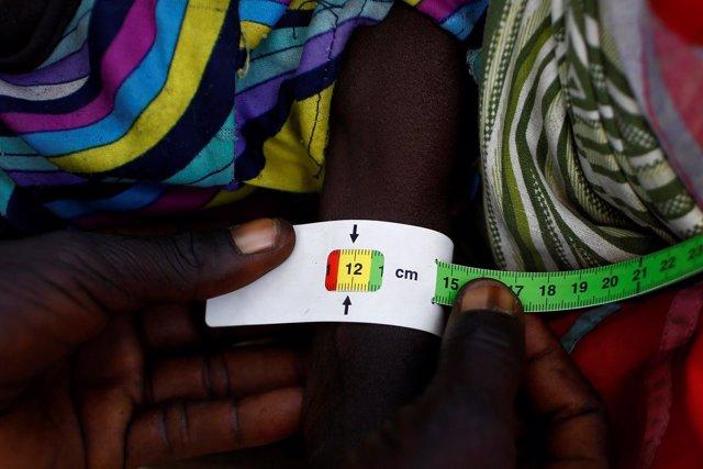 Un niño con signos de malnutrición en Sudán del Sur